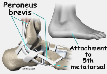 ankle_peroneal_tendinitis_anat05
